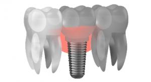 vitacea implantodontia img interna