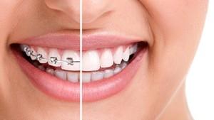 vitacea-ortodontia-corretiva-img-interna