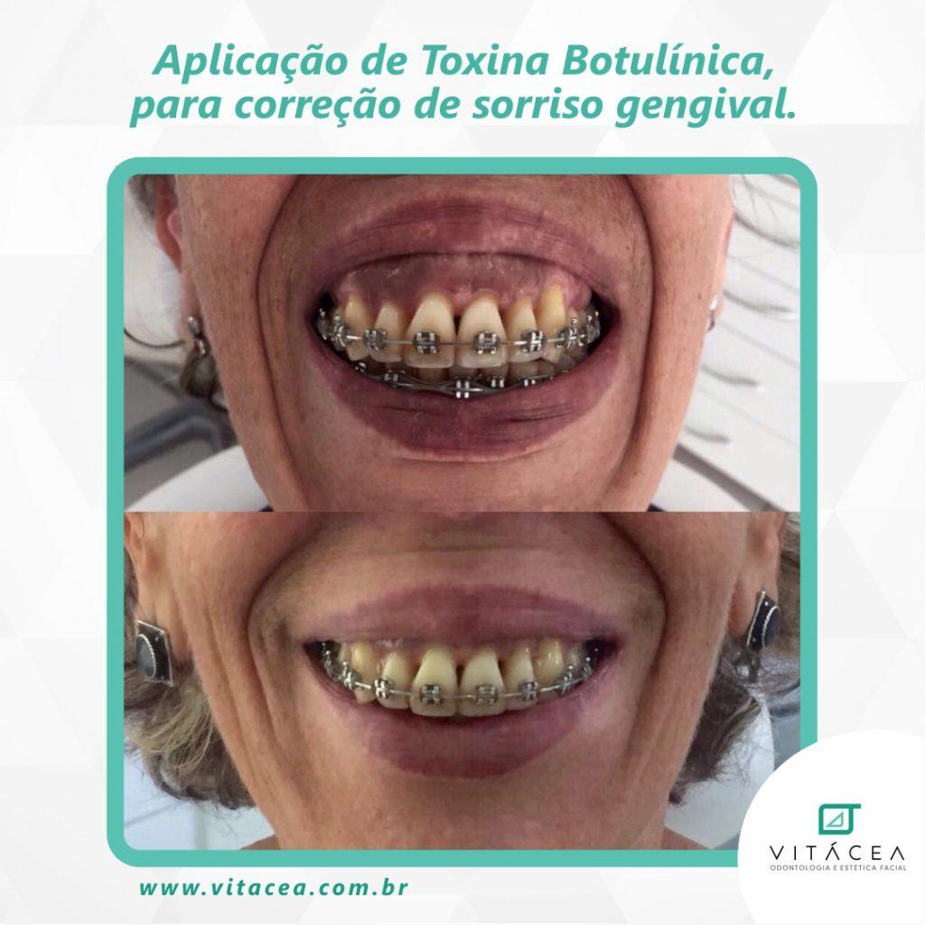 sorriso gengival e botox